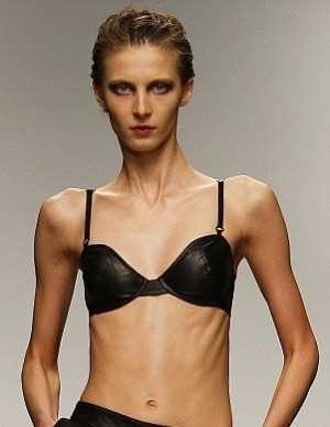 Famous Fashion Models With Eating Disorders